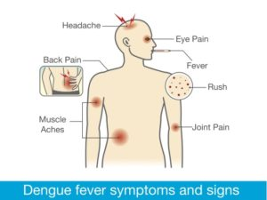Dengue symptoms. (Shutterstock)